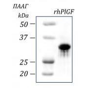 rhPlGF, плацентарный фактор роста человека, рекомбинантный белок, 10 мкг