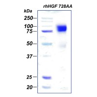 rhHGF 728AA, фактор роста гепатоцитов человека, рекомбинантный белок, 50 мкг